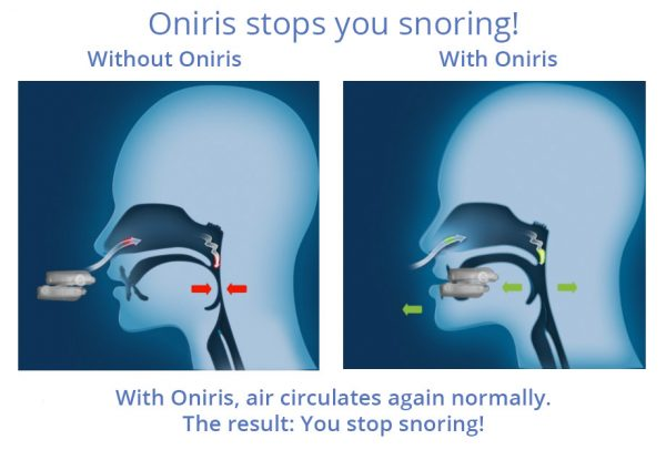 With and without ONIRIS1